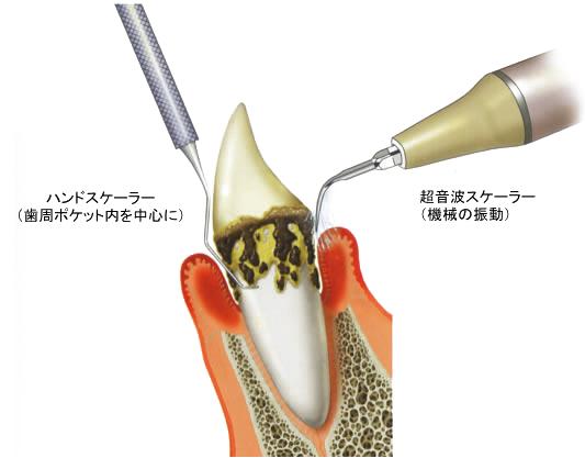 歯周病ポケット
