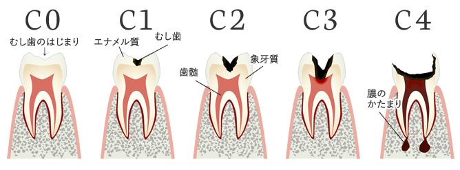 むし歯4段階